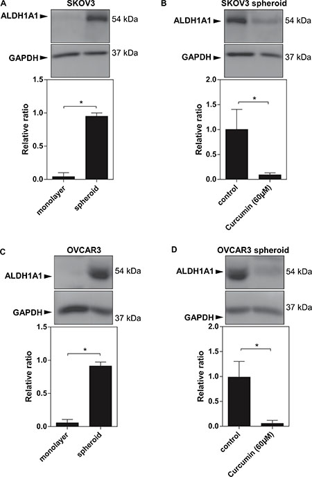 Increased ALDH1A1 expression in EOC spheroids.