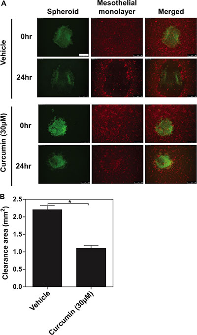 The inhibitory effects of curcumin on ovarian cancer spheroids invading the mesothelial monolayer.