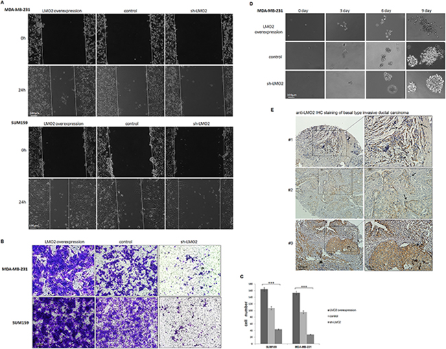 LMO2 promoted migration and invasion in basal-type breast cancer cells.