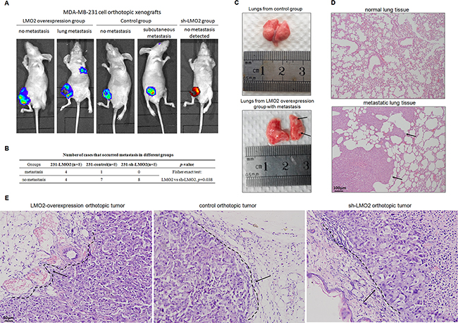 LMO2 promoted in vivo invasiveness and distant metastasis of basal-type breast cancer cells in orthotopic xenograft SCID mice.