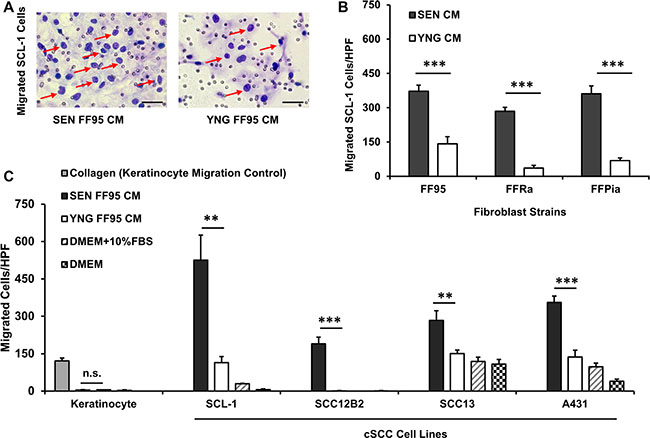 Secretome of senescent fibroblasts enhances the migration of squamous cell carcinoma lines.