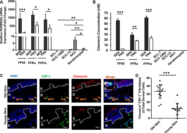 Chemerin is an upregulated SASP factor in human dermal fibroblasts.