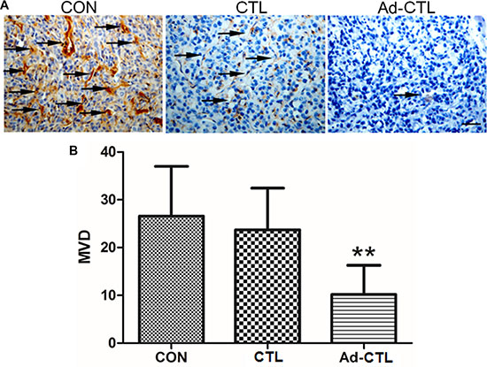 The effect of Ad5/35-TRAIL-CD40L-CTL (Ad-CTL) on pancreatic carcinoma angiogenesis in vivo.