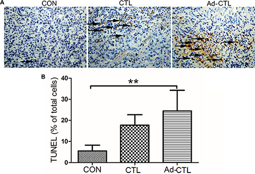 The effect of Ad5/35-TRAIL-CD40L-CTL (Ad-CTL) on pancreatic carcinoma cell apoptosis in vivo.