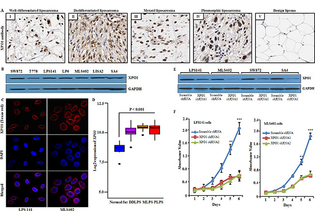 Expression of XPO1 in human liposarcoma tissue and cell lines, and XPO1 knockdown in liposarcoma cells.