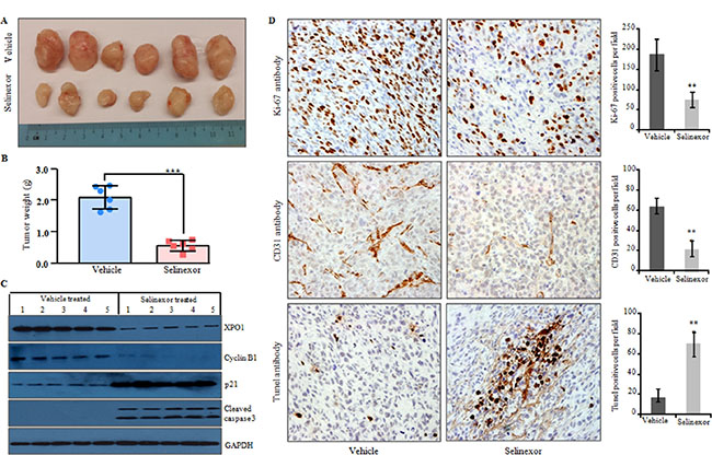 Selinexor significantly reduced tumor growth of LPS141 cells in a xenograft murine model.