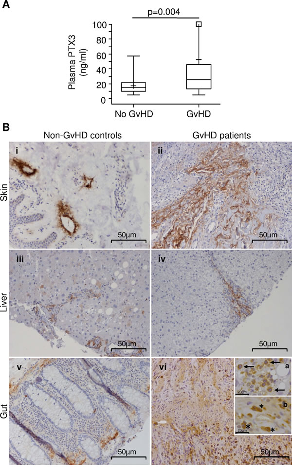 PTX3 levels in the plasma of HSCT patients at disease onset and PTX3 protein production in biopsies from GvHD target organs.