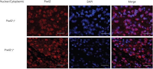 Immunofluorescence staining results of the localization and expression of a single marker Piwil2 in HCC tissues.