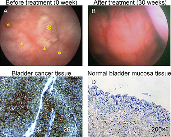 Photograph of bladder cancer with intravescical administration of BCMab1-Ra.