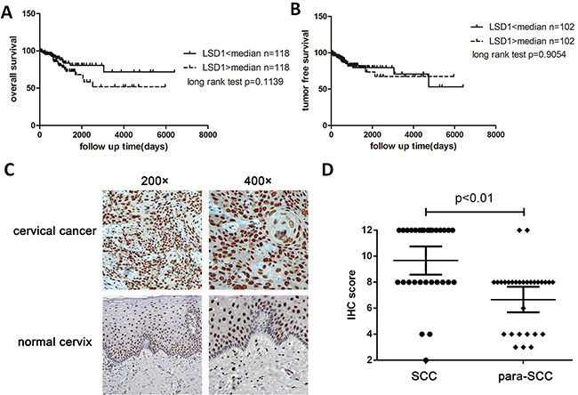 Overall survival and tumor-free survival of LSD1 high expression group and LSD1 low expression.
