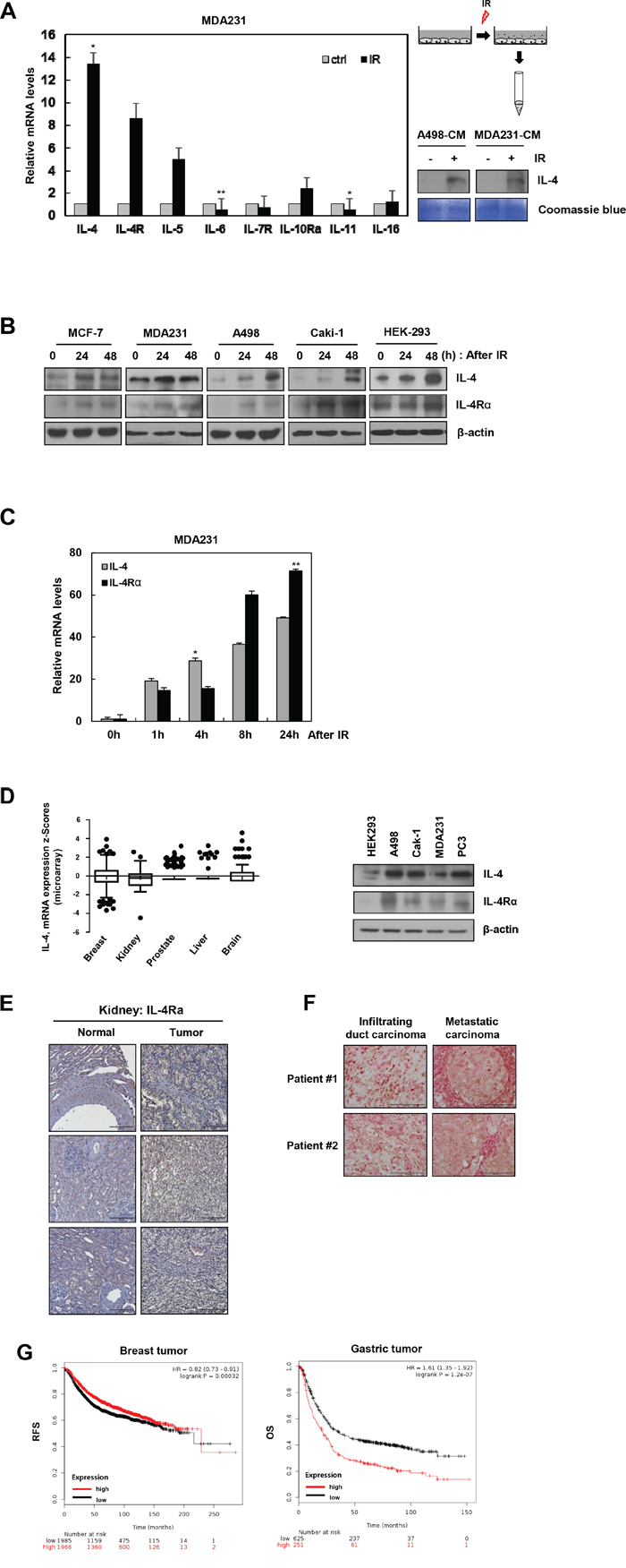 IR induces IL-4 and IL-4Rα expression in cancer cell lines.
