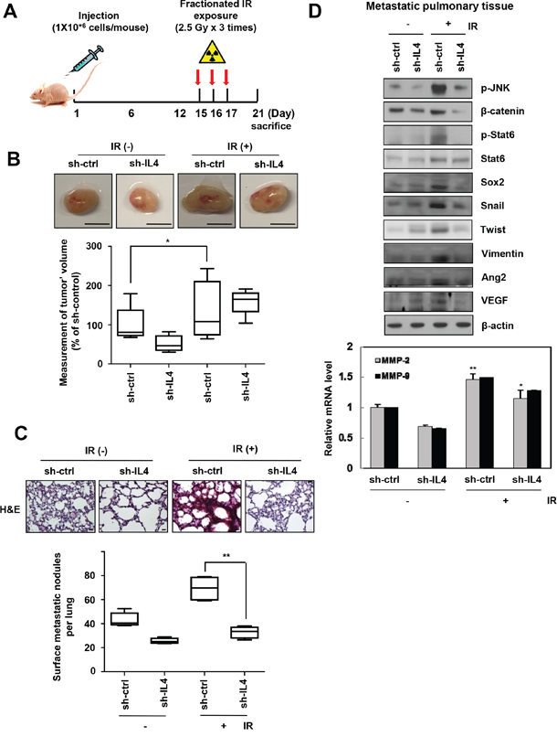 IR-induced IL-4 promotes primary breast cancer metastasis in nude mice.