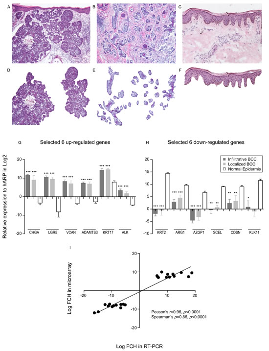 Laser capture microdissection identifies genes specific to BCC tumour nests.
