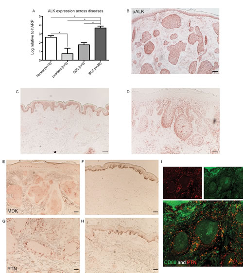 ALK and its ligands PTN and MDK are expressed in BCC tissue.