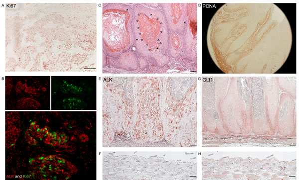 ALK and GLI1 are expressed in highly proliferating keratinocytic tumours in human and mice.