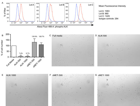 Crizotinib inhibits the growth of normal human epidermal keratinocytes.