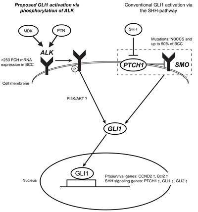 ALK may activate GLI1 in a coordinate fashion with the conventional SHH-pathway in BCC.