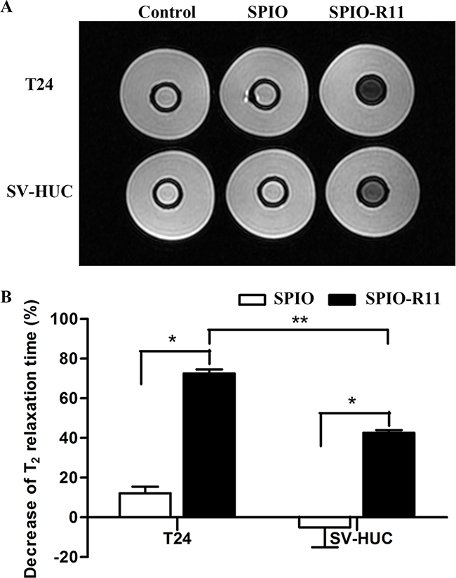 A. T2-weighted MR image of cells in gelatin (5×106 cells/mL) before and after 4 h incubation with SPIO and SPIO-R11 (50 μg/mL of Fe concentration).