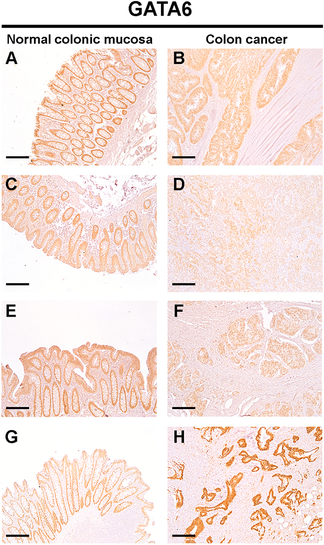 Protein levels of GATA6 are down-regulated in colon cancer tissues.
