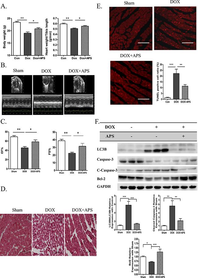 APS ameliorates doxorubicin-induced heart failure by restoring normal autophagy and decreasing apoptosis in vivo.