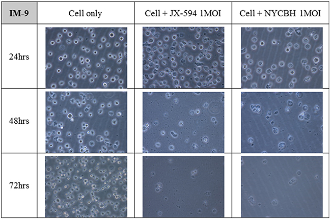 Microscopic images of myeloid leukemia cell line over time following viral infection.