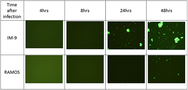 Fluorescence images after viral infection on leukemia cell lines.