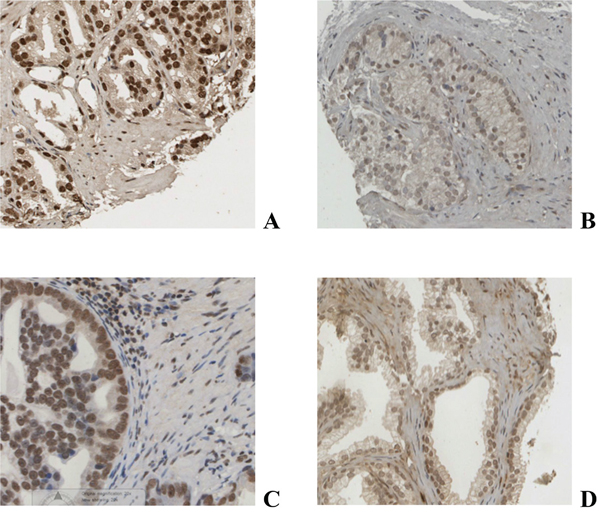 Immunohistochemical staining of prostate cancer tissue for AR A., pAR