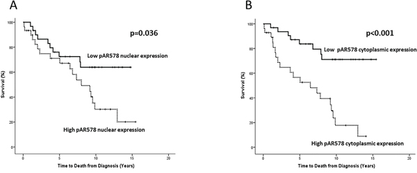 Kaplan-Meier survival plots illustrating disease-specific survival in patients with high (dashed line) and low (solid line) nuclear A. and cytoplasmic B. pARS578 expression.