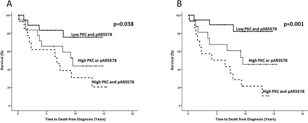 Kaplan-Meier survival plots illustrating disease-specific survival in hormone-naïve prostate cancer patients with nuclear PKC expression combined with nuclear A. and cytoplasmic B. pARS578 expression.