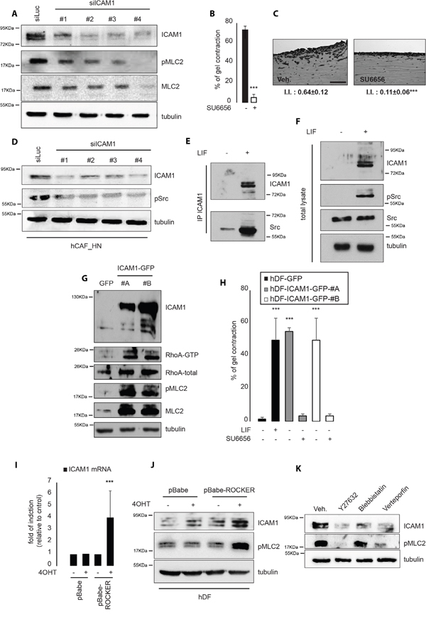 ICAM-1 regulates and is regulated by acto-myosin contractility.