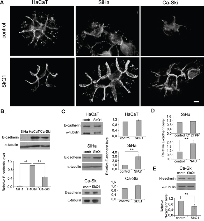 SkQ1 stimulated expression of E-cadherin and inhibited expression of N-cadherin in cervical cancer cells.