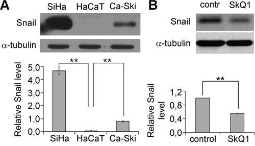 SkQ1 decreased Snail content in SiHa cells.