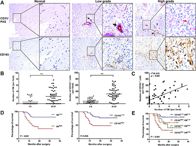 Correlation of VM level with CD163 expression in human glioma tissue and overall survival for glioma patients.