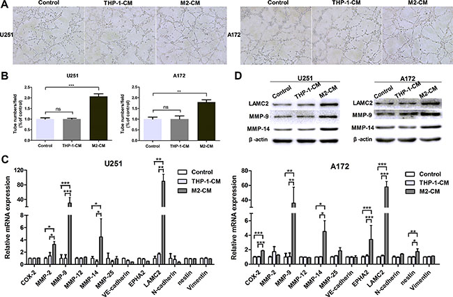 M2-like macrophages drive VM formation of glioma cells in vitro.