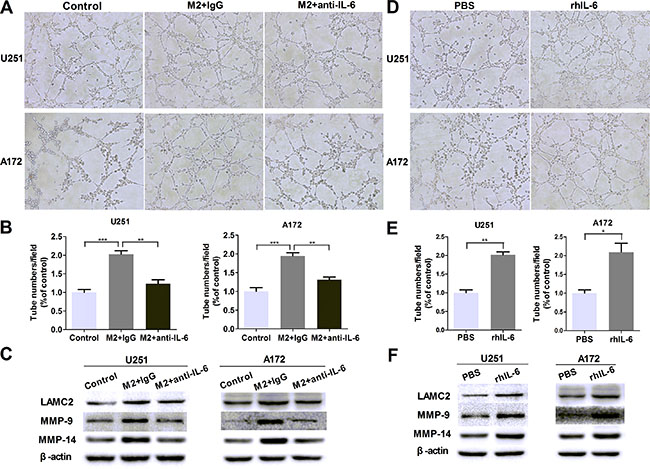 IL-6 upregulation is responsible for VM promotion in glioma cells.