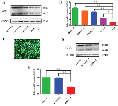 Expression of sCLU in HCC cells or silencing by specific shRNA.