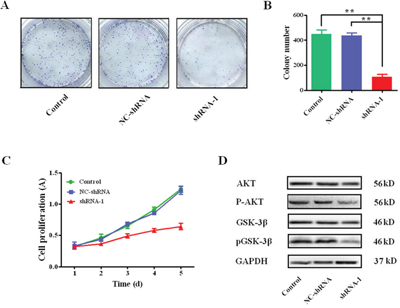 Silencing sCLU on effects of colony formation and cell proliferation.