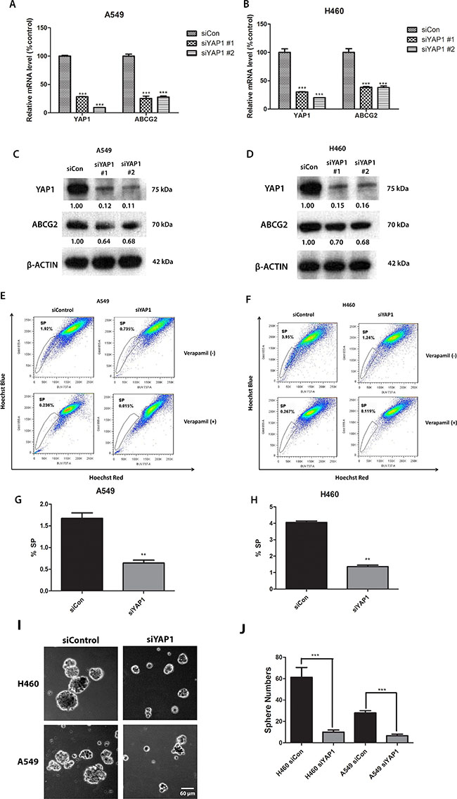 Knockdown of YAP1 decreases ABCG2 expression and the percentage of SP cells in NSCLC cell lines A549 and H460.