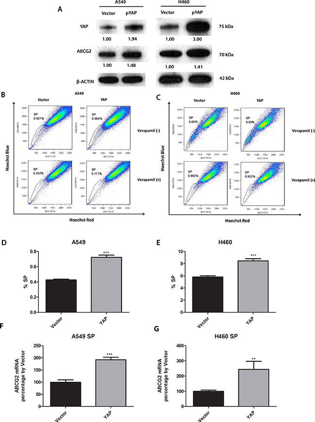 Knockdown of YAP1 decreases ABCG2 expression, the percentage of SP cells and the number of spheres formed in A549 and H460 cells.