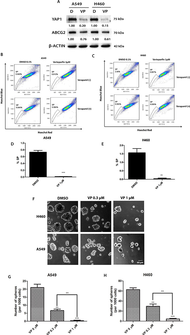The YAP1-TEAD complex inhibitor verteporfin (VP) reduces ABCG2 expression, the percentage of SP cells and sphere formation in A549 and H460 cell lines and potentiates the cytotoxicity of doxorubicin (DOX).