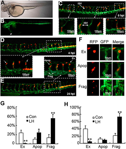 The effect of LH on extravasation of RFP-HepG2 cells in a metastasis model in Tg(flk1:EGFP) transgenic zebrafish.