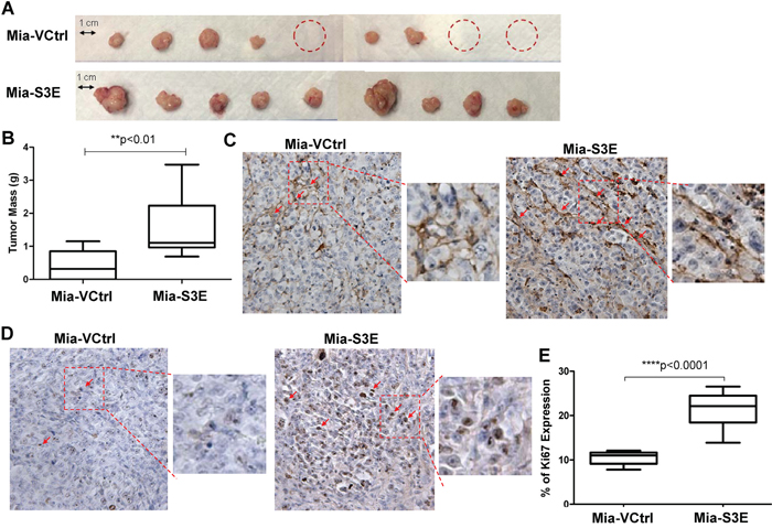 Overexpression of Sema3E increases cancer cell proliferation and tumor growth in vivo.