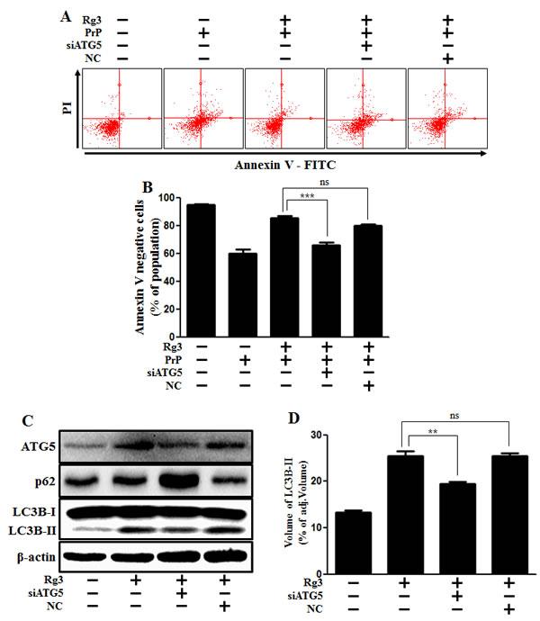 ATG5 knockdown decreases Rg3-mediated neuroprotective effect.
