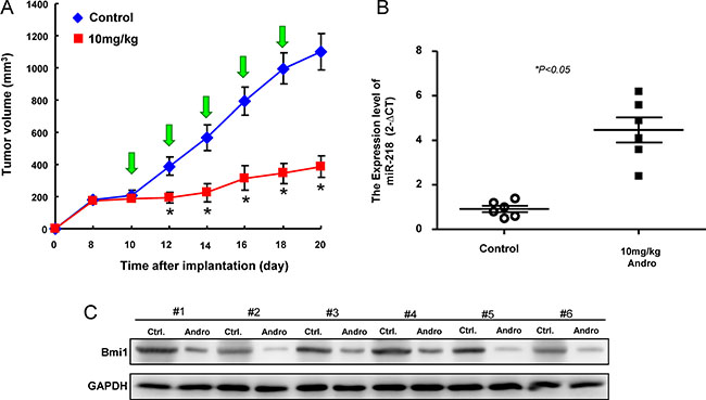 Inhibition of tumor growth by Andrographolide via miR-21/Bmi1 axis