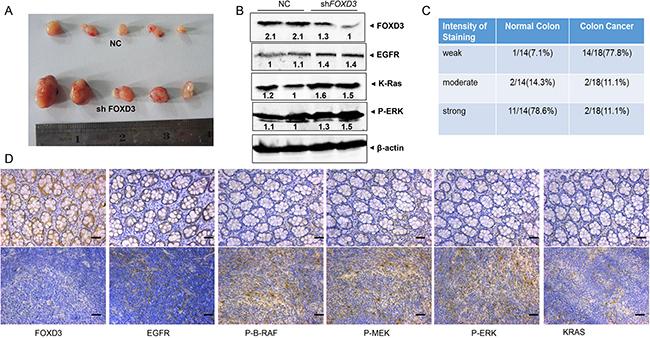 FOXD3 inhibited EGFR/Ras/Raf/MEK/ERK signal pathway in xenograft tumor and human samples.