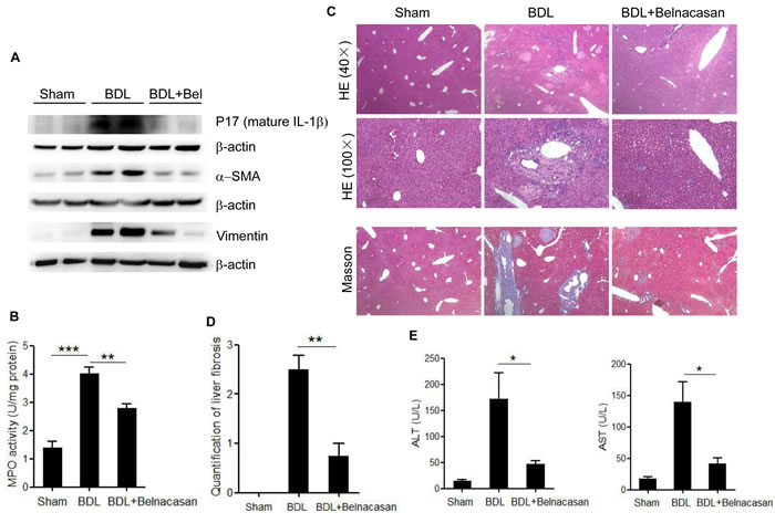 Caspase-1 antagonist attenuates liver inflammation and fibrosis in BDL mouse model.