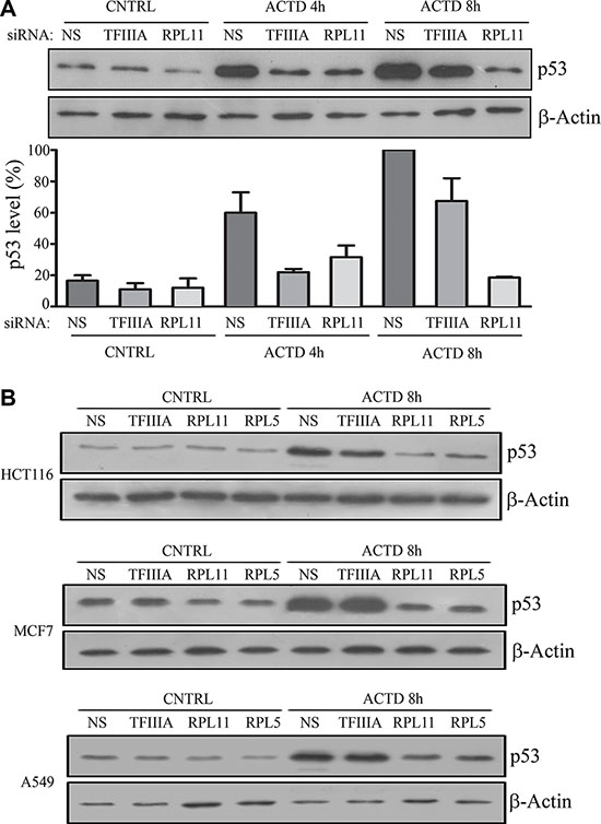 5S rRNA neosynthesis inhibition do not efficiently abrogates p53 stabilization after inhibition of ribosome biogenesis.