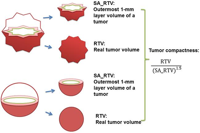 Illustration for RTV, SA_RTV, and tumor compactness (RTV, real tumor volume; SA_RTV, surface area of RTV).