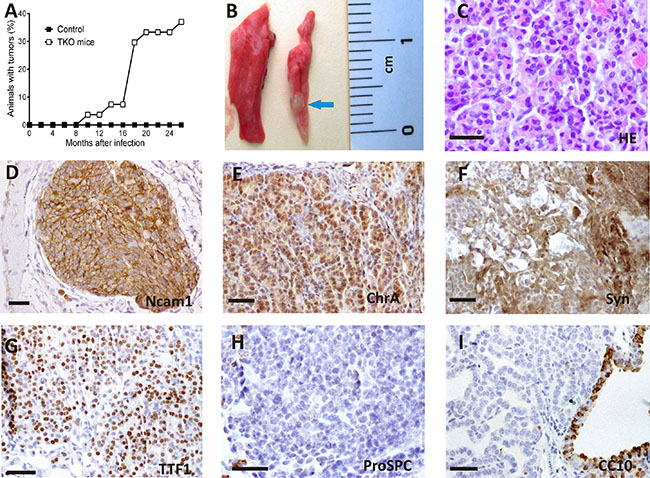 Spontaneous tumorlet development after ablation of Rb family members in adult TKO lungs.