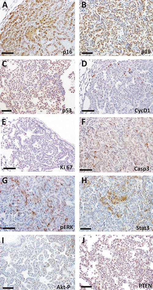 Immunohistochemical analysis of spontaneous tumorlets in TKO mice.